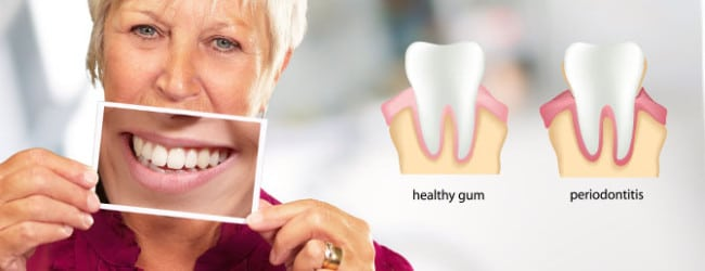 AD_services_0001s_0002_Periodontal Maintenance
