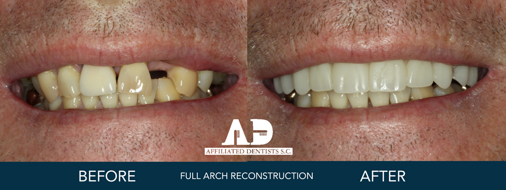 full arch reconstruction before and after